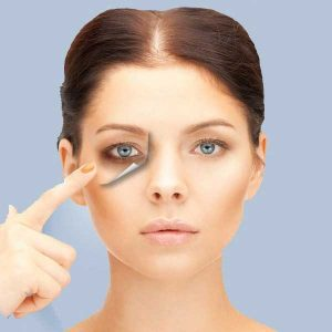 Read more about the article How to get rid of dark circles